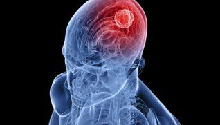 Симптомы рака головного мозга — формы, стадии, причины