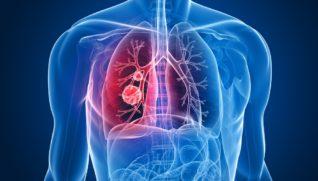 Симптомы рака легких — причины, виды, стадии