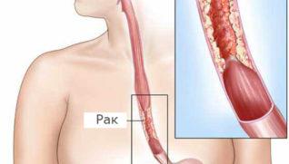 Симптомы рака пищевода: ранние причины, степени и стадии болезни