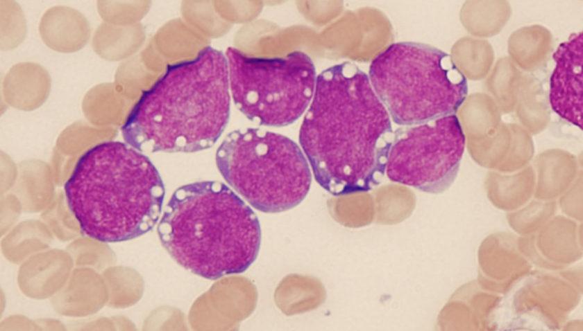 Лимфома Ходжкина — излечимое заболевание лимфатической системы
