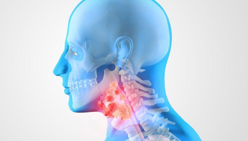 Рак горла — краткий ликбез для пациентов