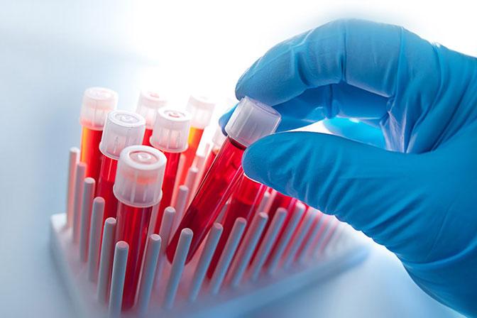 Анализ крови при лейкемии