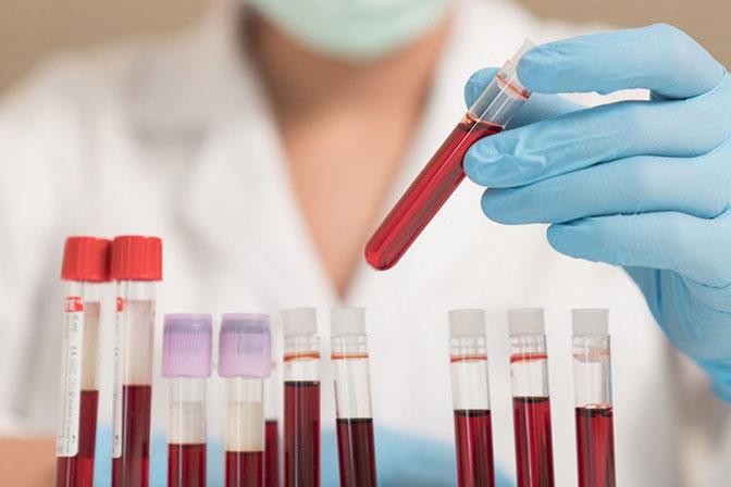 Анализ крови при подозрении на рак горла