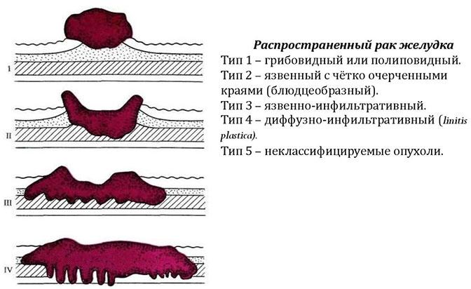 Классификация рака желудка по мере распространения