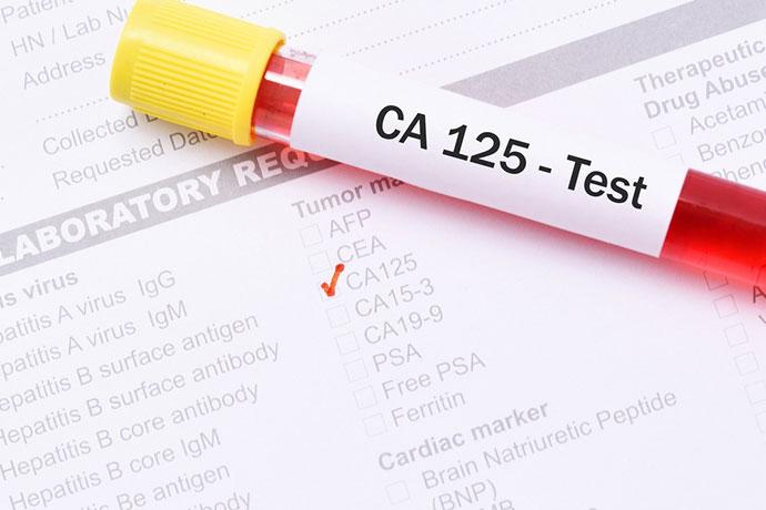 Онкомаркер CA-125 — раковый антиген в онкологии