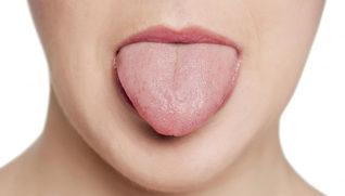 Опухоли языка — причины, стадии, лечение