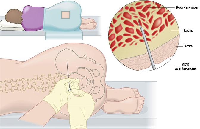 Пункция костного мозга при лейкемии
