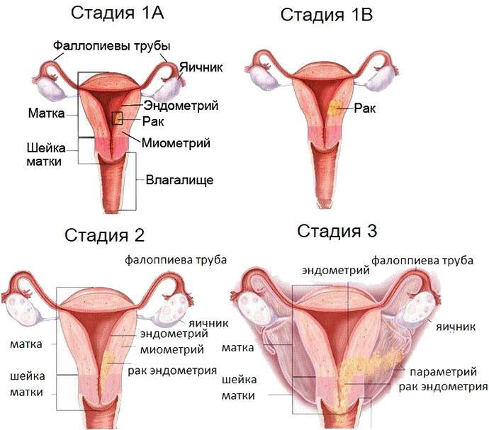 Рак матки, эндометрия, фаллопиевых труб