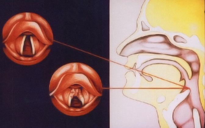 Рак вестибулярного отдела гортани