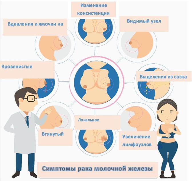 Симптомы рака грудм