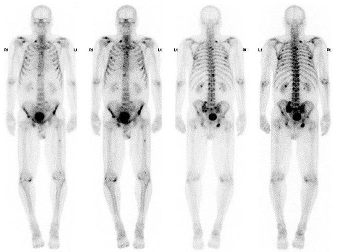 Скелетная сцинтиграфия