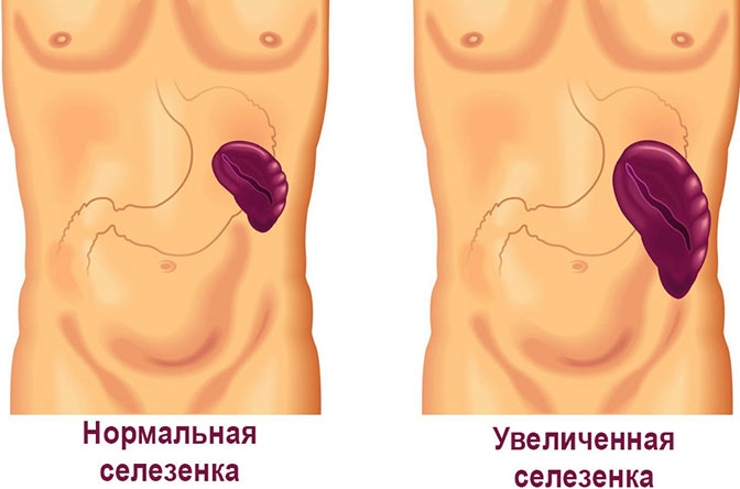 Увеличенная селезенка лейкемии