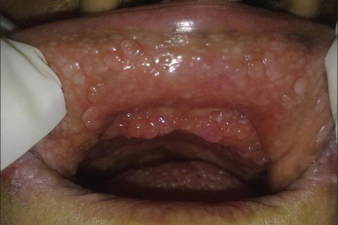 Папилломатоз