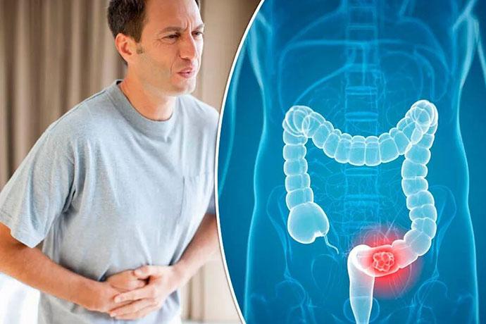 Причины рака кишечника