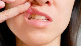 Рак Губы — причины, симптомы, разновидности, лечение