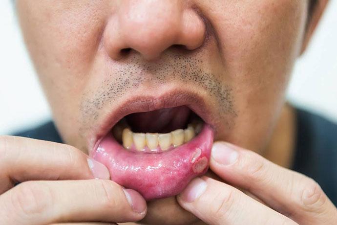 Рак губы у мужчин