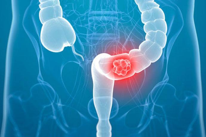 Рак Кишечника — признаки, разновидности, лечение