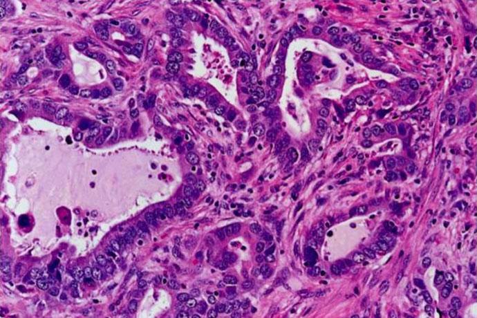 Аденокарцинома легких