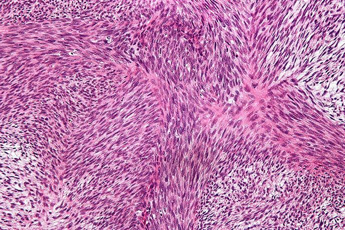 Клетки фибросаркомы