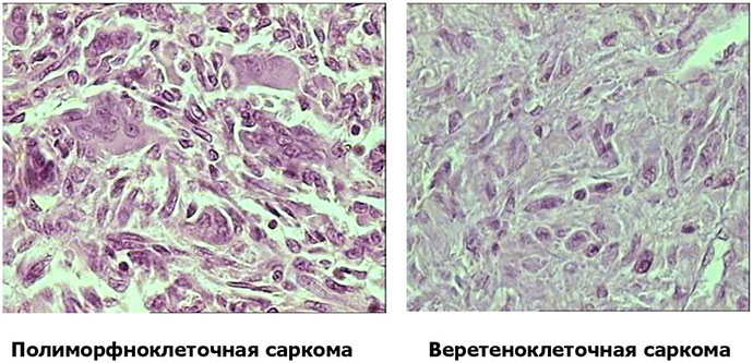 Клетки полиморфноклеточной и веретеноклеточной сарком