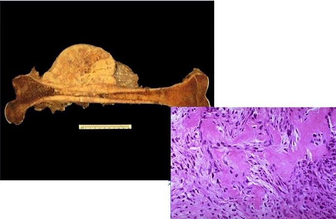 Саркомы кости (остеосаркома)