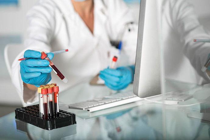 Анализ крови при карциноме