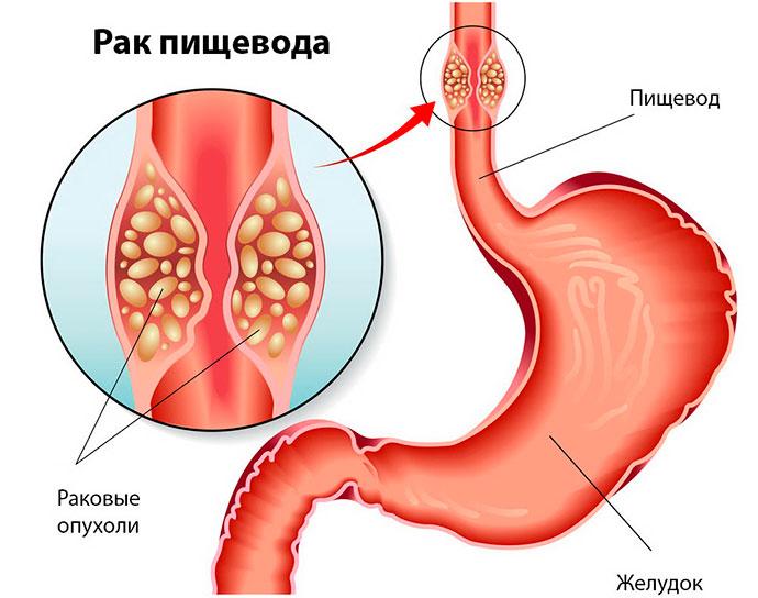 Карцинома пищевода