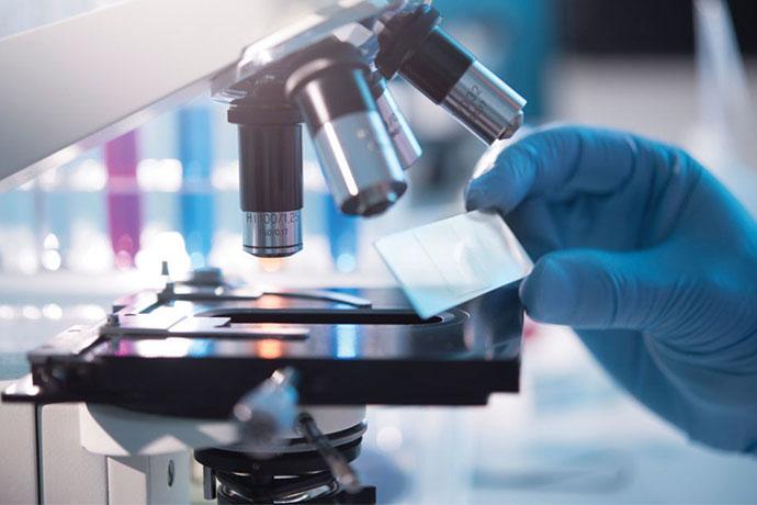 Лимфома - лабораторные исследования