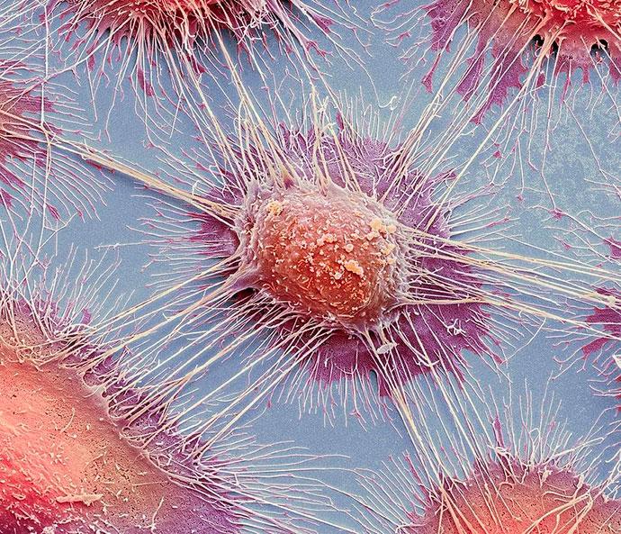 Как выглядят раковые клетки под микроскопом